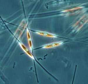 Nualgi - Microscopic Diatoms | Courtesy: WISC.edu